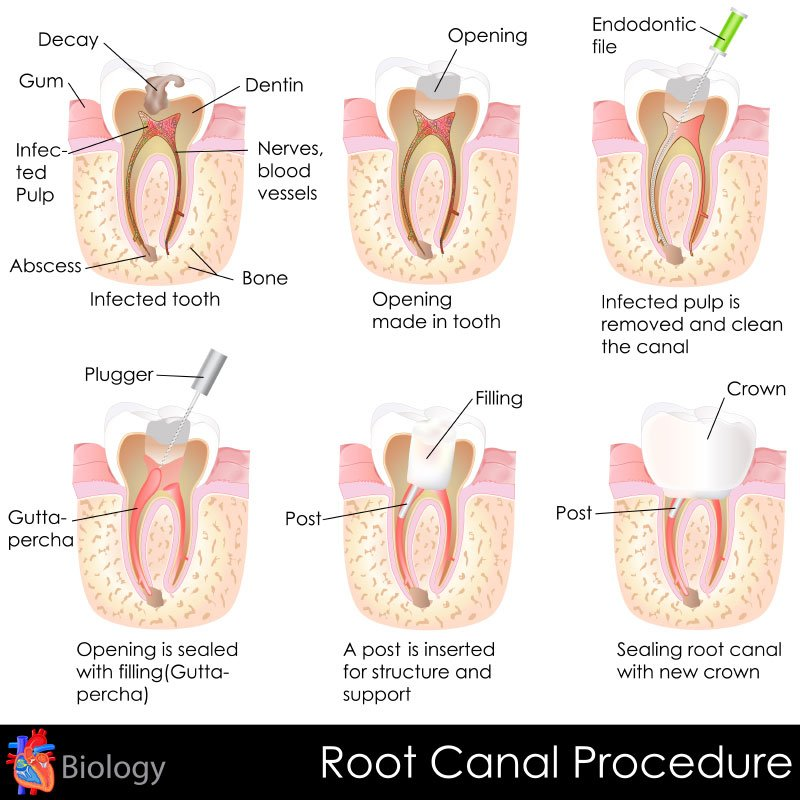 Eugene Dentist - Root Canal Procedure