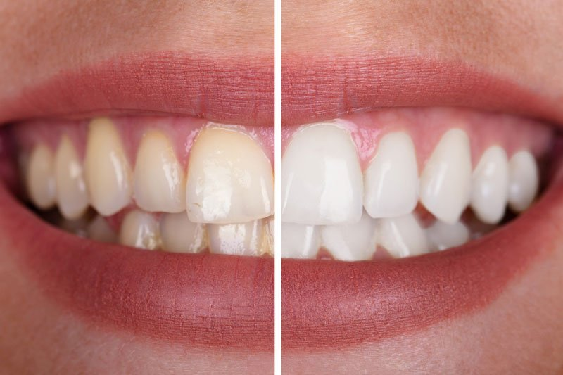 Teeth Whitening Eugene Oregon