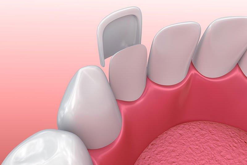 cosmetic dentistry in eugene